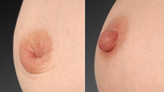 陥没乳首手術